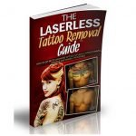 Laserless-Tattoo-Removal-sso