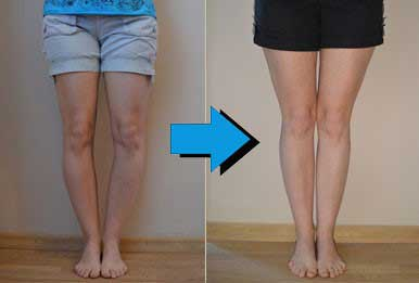 Bow Legs No More, A Best Reviews