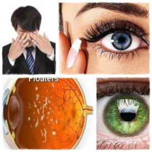 Eye Floaters No More. Get Rid Of Eye Floaters Easily by Daniel Brown, All Best Reviews