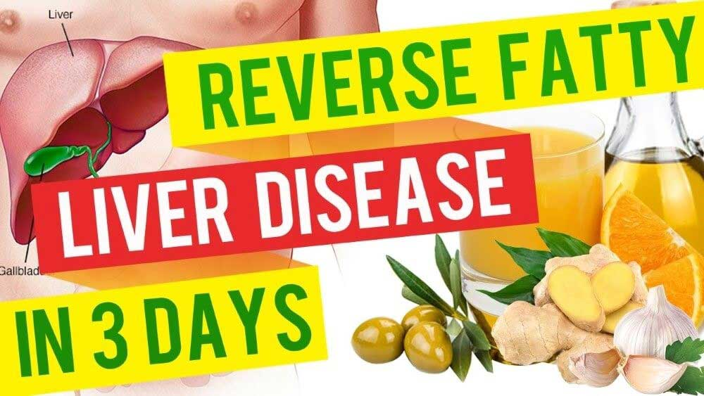 What is the Fatty Liver Remedy?