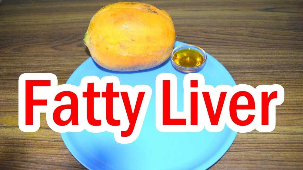 Fatty Liver , Fatty Liver Remedy Review: Does the Solution and Detox .. , Hamburgers, pizzas and other junk foods are so sweet to the tongue, aren't they? Foods full of sweeteners and sugars make up a huge percentage of our consu
