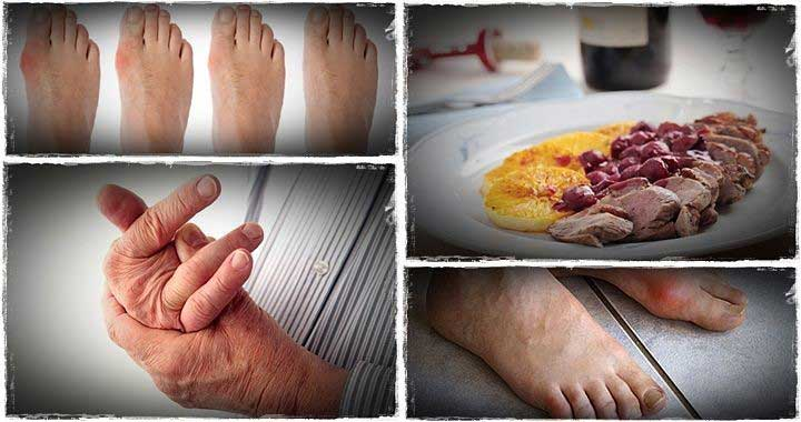 Gout and You – The Ultimate Gout Diet and Cookbook. Spiro Koulouris, All Best Reviews