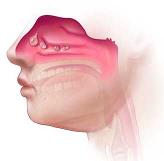 Nasal Polyps Treatment Miracle: The Natural Nasal Polyps Cure