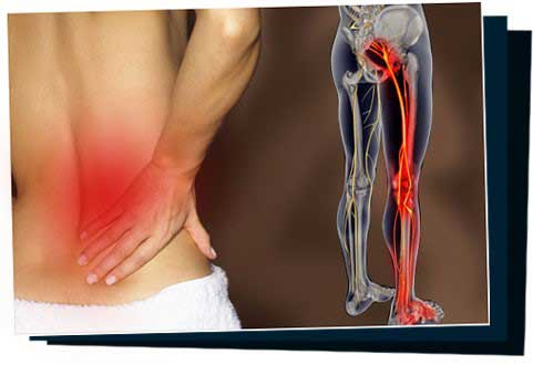 Sciatica SOS 2 Sciatica SOS - Your Guide To Eliminating The Back Pain In 7 Days Or ...