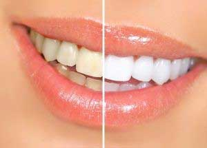 How to Whiten Your Teeth Easily Naturally Forever By Lucy Bennett, All Best Reviews